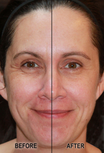 Hydriance Dermal Lift Before and After